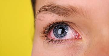 red eye treatments