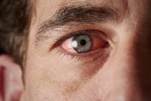 4 Common Misconceptions About Pink Eye