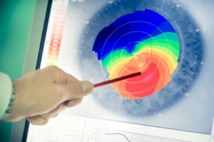 What Is Corneal Mapping & How Does it Work?